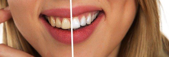 5 טיפים שיסייעו לכם לשמור על שיניים לבנות